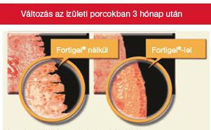ch-alpha-izület-izületi-porc
