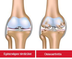 artrózis kezelésében súlyosbodás lehetséges