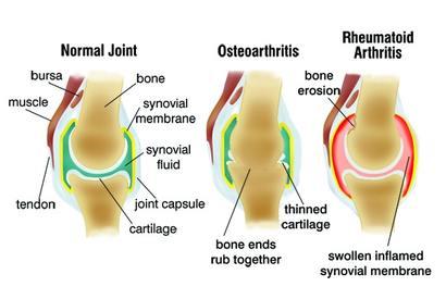 Hogyan lehet enyhíteni az ízületi fájdalmakat az artrózissal - Közös kenőcs gélek