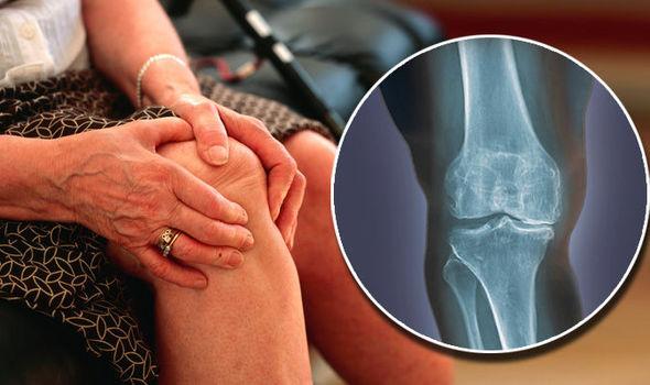 a térd artrózisának kezelése műtét nélkül)